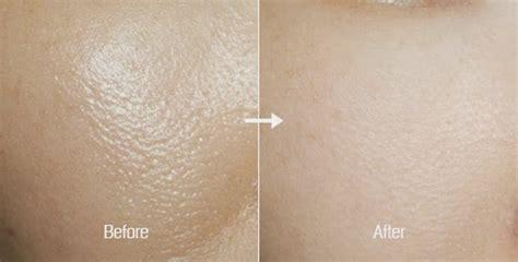 Sabun Muka Untuk Pori Pori Besar Cara Mengecilkan Pori Pori Wajah Secara Alami Dan Mudah