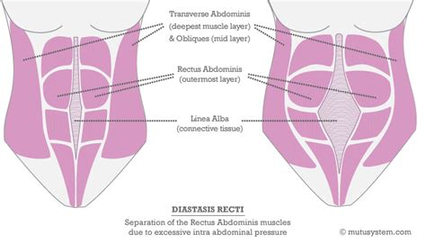 transverse abdominal exercises after c section diastasis recti exercises to do and exercises to avoid
