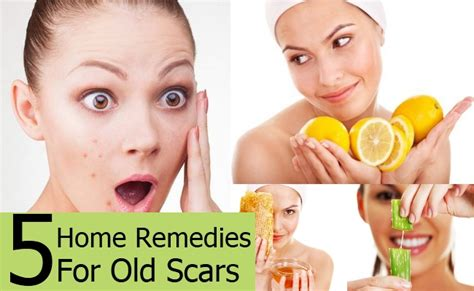 5 home remedies to treat scars naturally top diy