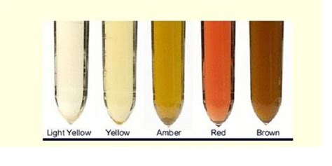 light colored urine what your urine colour is telling you about your health