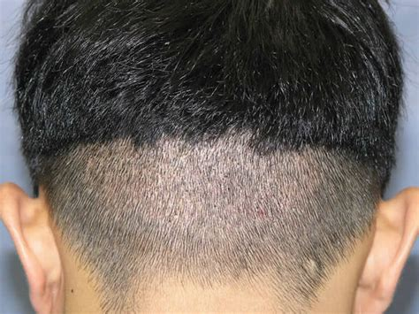 new technology for hair transplant the newest technology of fue hair transplant