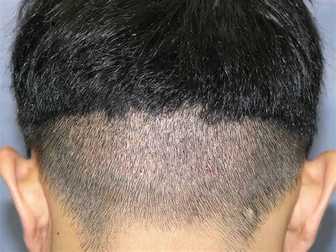 fue haircuts procedure details metro hairtransplant