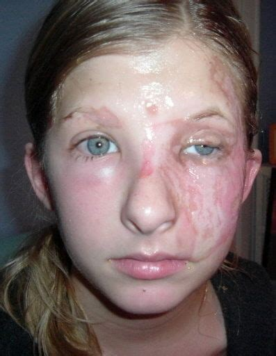 Pictures Of Burned Faces