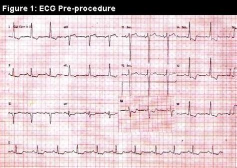 strain pattern ecg definition left ventricular strain pattern 1000 free patterns