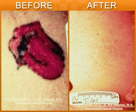 laser removal in new jersey for and