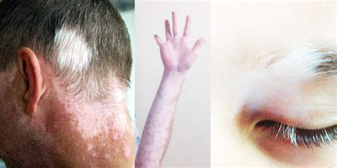 Skin Disease Loss Of Pigment With Hair Loss | skin disease loss of pigment with hair loss skin disease