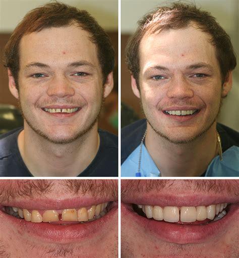 dental bonding    pictures natural smiles
