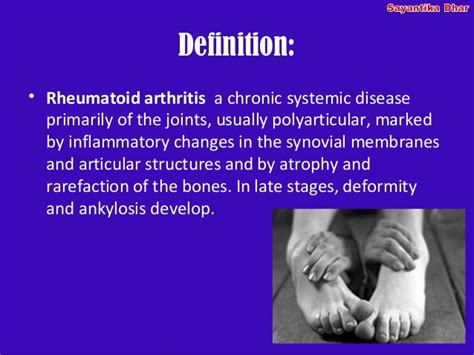 arthritis definition of arthritis by medical dictionary physiotherapy management of the rheumatoid hand