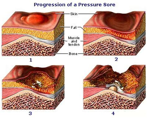 Bed Sore Stages by Pressure Sores Sci