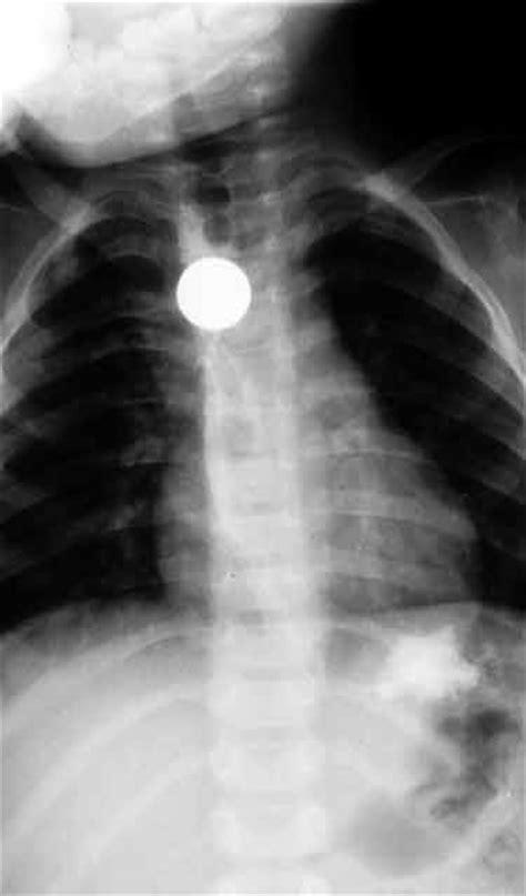 Ciało obce w przełyku - Diagnostyka w pediatrii