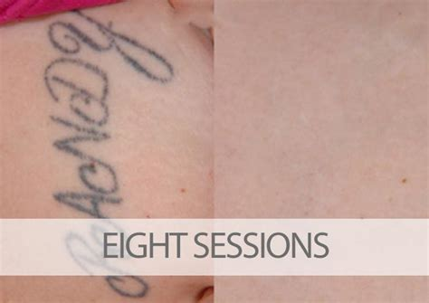 laser tattoo removal technician 3 things laser removal techs should tell you