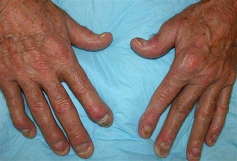 scalp psoriasis the psoriasis and psoriatic arthritis pictures of autoimmune problems psoriatic arthritis