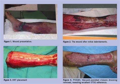 integra dermal regeneration template complex wound management with an artificial dermal