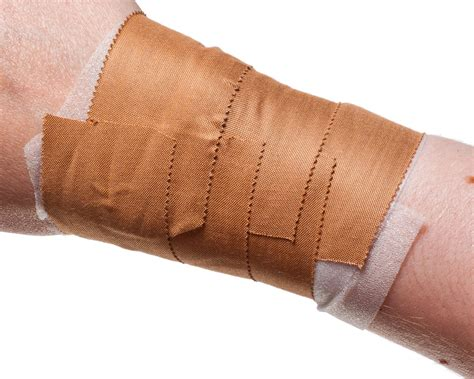 preventative wrist taping physical sports first aid blog