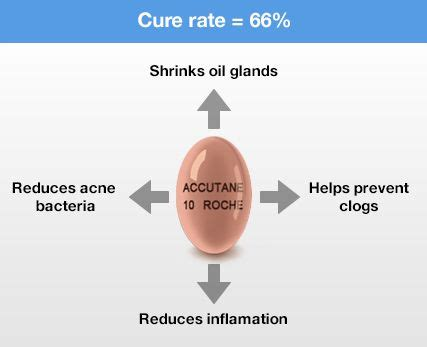 Accutane Liver Detox by 18 Best Accutane Survival Guide Images On Skin