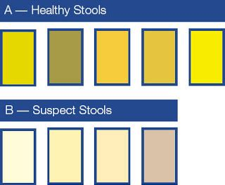 Pale Yellow Stool In Adults by B L O O D