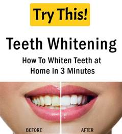Home Teeth Whitening by Teeth Whitening How To Whiten Teeth At Home In 3 Minutes