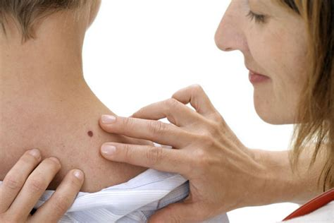 cancer symptoms skin cancer facts