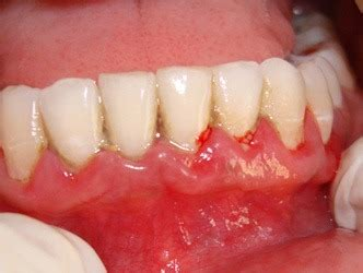 what color are your gums supposed to be how to heal a cut on your gums quora