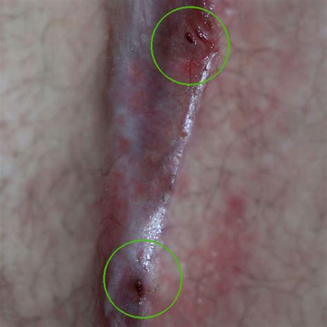 Fishy Mucus In Stool by Stei 223 Beinfistel Cyberdoktor Patientenberatung