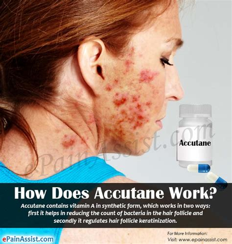 does the illumask for acne really work how does accutane work how should you take accutane to
