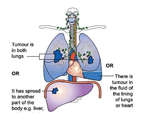 diagram of cancer diagram of cancer image collections how to guide