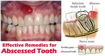 home remedies for abscess tooth alf img showing gt tooth abscess home remedies