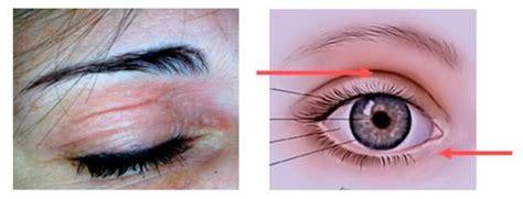 cura orzaiolo interno dermatiti palpebrali riconoscere blefarite calazio
