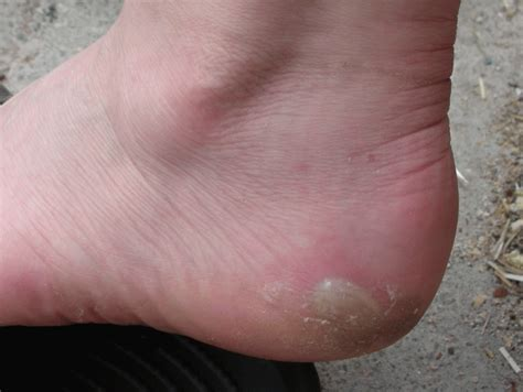best way to heal blisters on how does it take for a blister to heal step by step