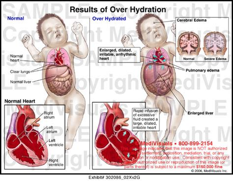 hydration and brain function202020201020303020102020200 02 medivisuals results of hydration illustration