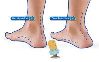Mba Implant For Flat by Pronation Of The Foot What Are The Treatments