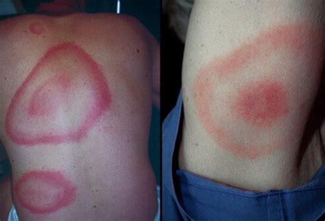 rash that looks like rug burn lyme disease picture image on medicinenet