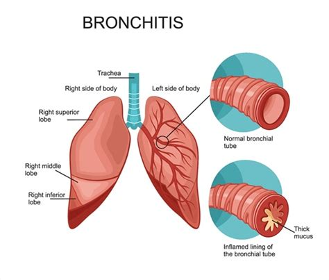 Pdf Cortana What Are The Symptoms Of Pneumonia by What Is Bronchitis