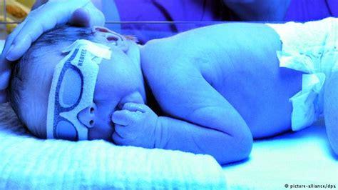 Handuk Tanngan Kecil Pooh Kuning deteksi sakit kuning pada bayi prematur iptek dw de 27 11 2013