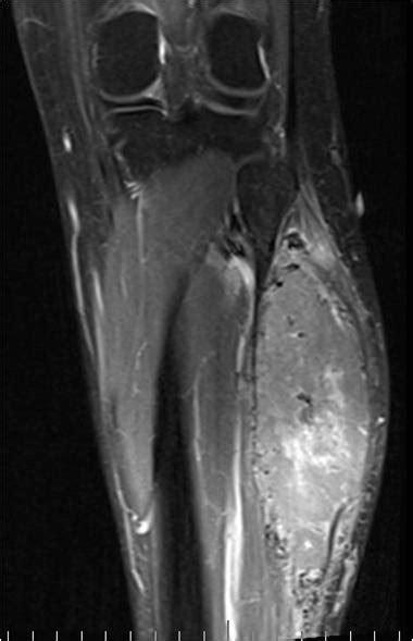 Alveolar Soft Part Sarcoma - PORTNotes - OrthopaedicsOne