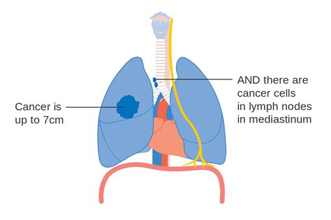 lung cancer diagram file diagram 1 of 3 showing stage 3a lung cancer cruk 008