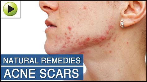 skin care acne scars ayurvedic home remedies