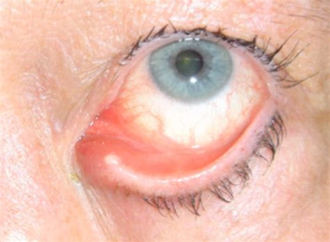 eye yellow discharge newborn eye infection yellow discharge submited images