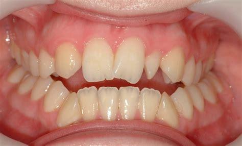 Laser Pemutih Gigi kecantikan gigi laser whitening kebenaran