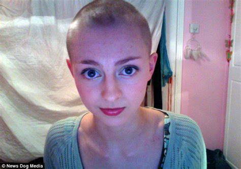 youtube s rebecca brown shaves her head to combat hair student with rare hair pulling condition trichotillomania