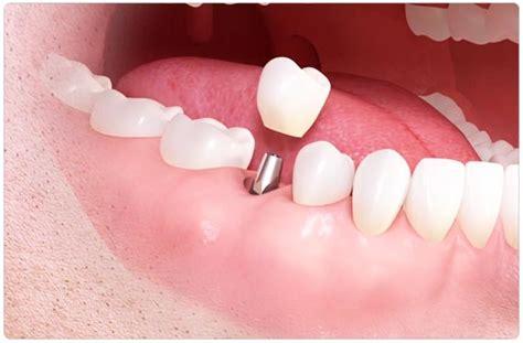 teeth whitening  turkey  teeth turkey dentist