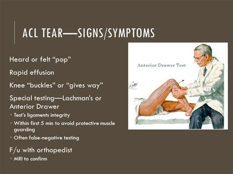torn acl symptoms the knee chapter ppt