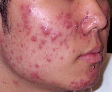 pustules pestilence and tudor treatments and ailments of henry viii books acne causes and treatment offline clinic