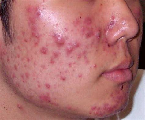 pustules pestilence and tudor treatments and ailments of henry viii books acne causes and treatment offline clinic