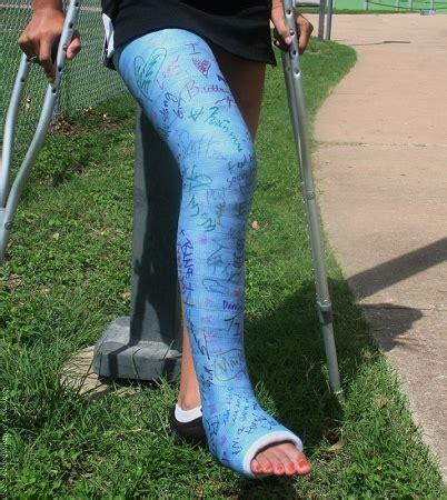 Or Casts Buy Leg Cast Kit Llc From Orthotape Shop Leg Cast