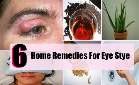 6 home remedies for eye stye search home remedy
