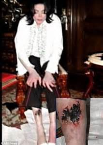 what s happened to mj s legs michael jackson