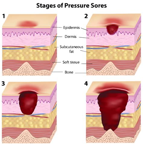 what are bed sores new definitions of pressure wounds eldercare advice blog