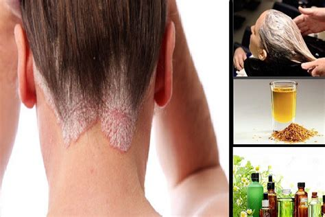 best hair for psoriasis best natural psoriasis scalp treatment at home