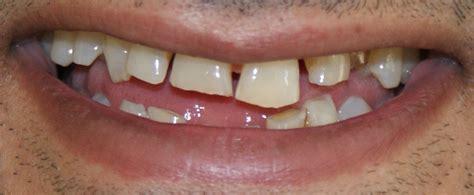 cheema dental implant centre dental implants jalandhar